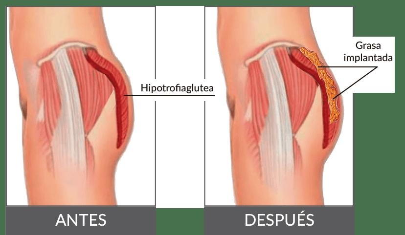 Gluteoplastia grasa GLUTEOPLASTIA: CIRUGÍA DE GLÚTEOS