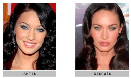 bolas de bichat famosas Afina tu rostro: Operación de moda, Bolas de Bichat