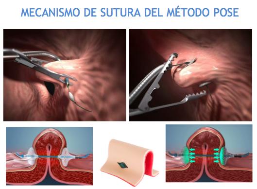 image003 MÉTODO POSE