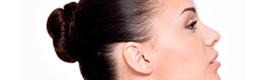 rino2 Rinoplastia: dale a tu nariz el protagonismo que merece