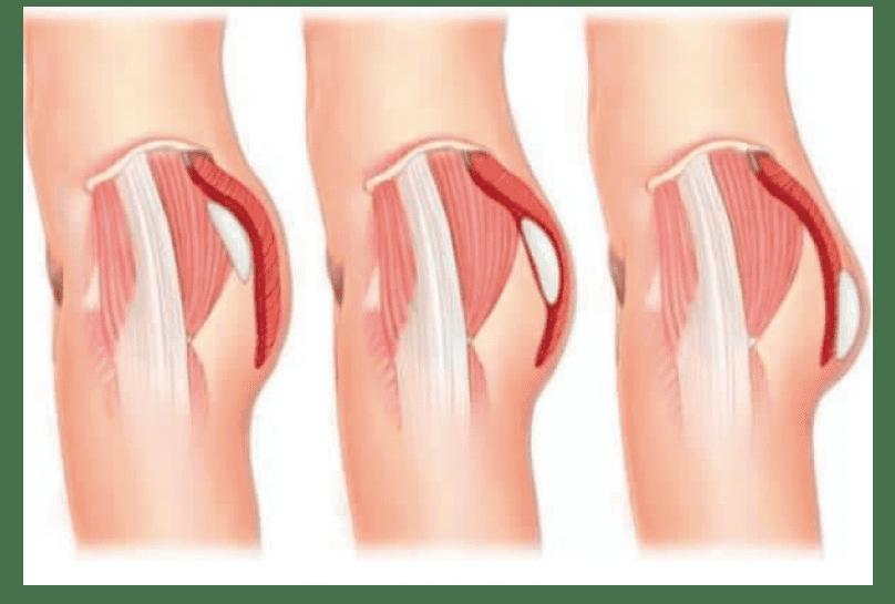 Gluteoplastia implantes GLUTEOPLASTIA: CIRUGÍA DE GLÚTEOS