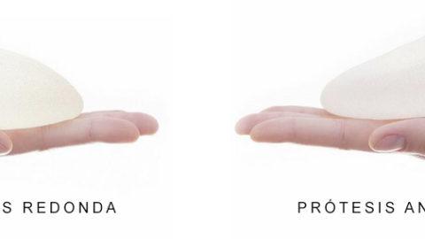 Prótesis mamarias para aumento de pechos: tipos, tamaños, formas y rellenos