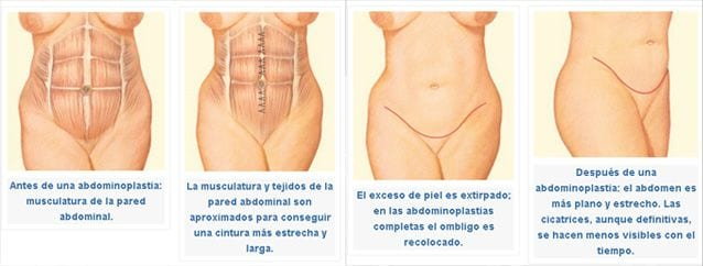 abdominoplastia2 ABDOMINOPLASTIA