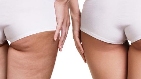 Operación Bikini: Buenos hábitos para poder decir… ¡Bye Bye Celulitis!