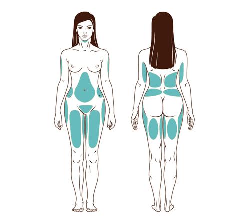 cuerpos zonas Liposucción