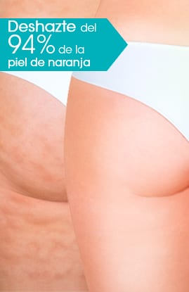 dermoplastia DERMOPLASTIA AWT®