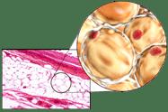 hidrolipoclasia icono 1@2px Lipobarrido