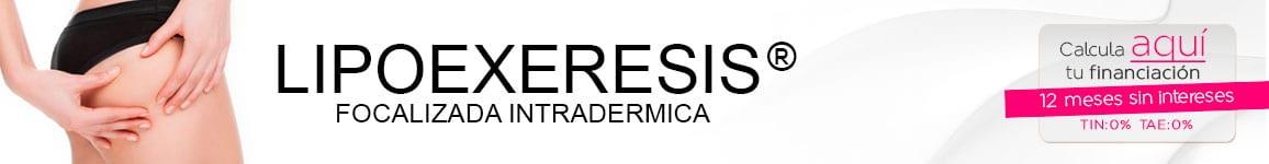 lipoexeresis1 LIPOEXÉRESIS ®