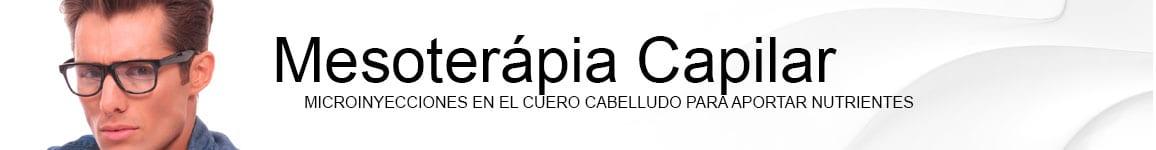 mesoterapia capilar MESOTERÁPIA CAPILAR