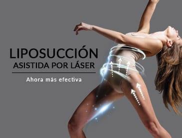 ofertas Liposuccion laser2 PROMOS